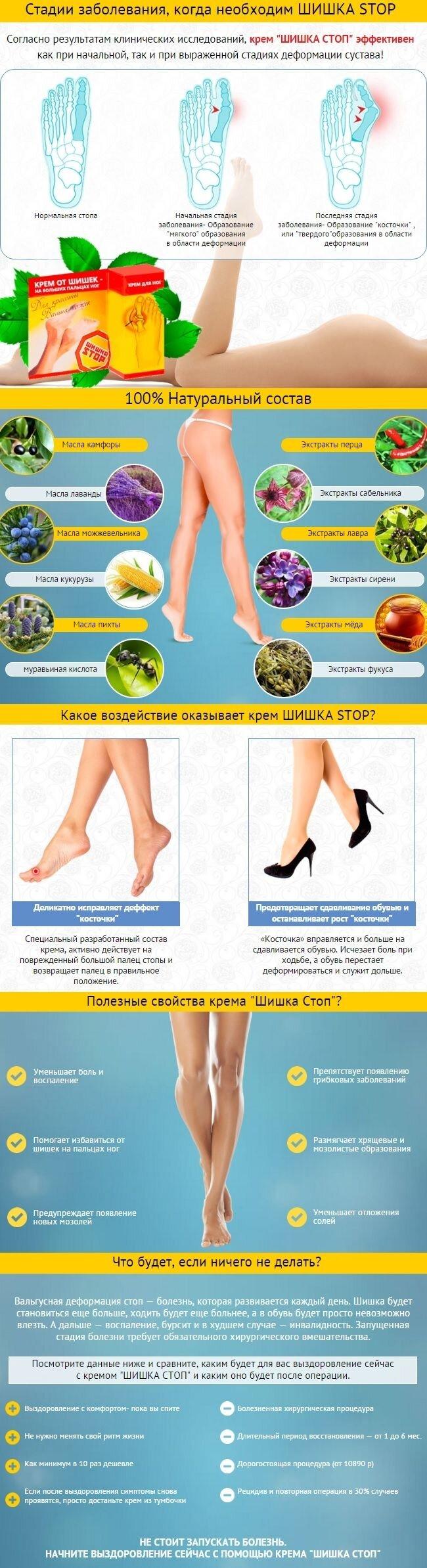 Крем «ШИШКА СТОП» от шишек на больших пальцах ног - фото купить крем шишка стоп