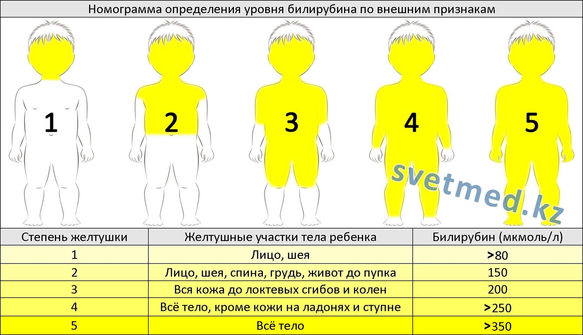 Номограмма определения уровня билирубина