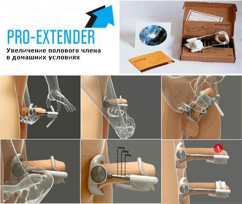 """Экстендер для увеличения пениса """"ProExtender"""" - фото 2"""